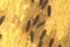 Uova di Psychoda alternata e di Aedes albopictus